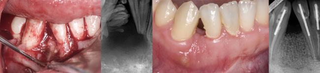Curso Superior en Cirugía, Periodoncia e Implantes - UJI
